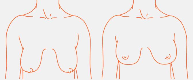 INFORMACJE_piersi-definicja2